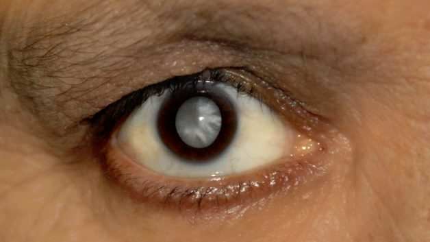 https://www.fabriciowitzel.com.br/wp-content/uploads/2014/05/Cataract_patient-628x353.jpg