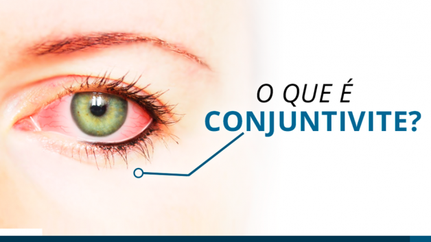 https://www.fabriciowitzel.com.br/wp-content/uploads/2019/05/img-blog-ocular-max-care-4-628x353.png